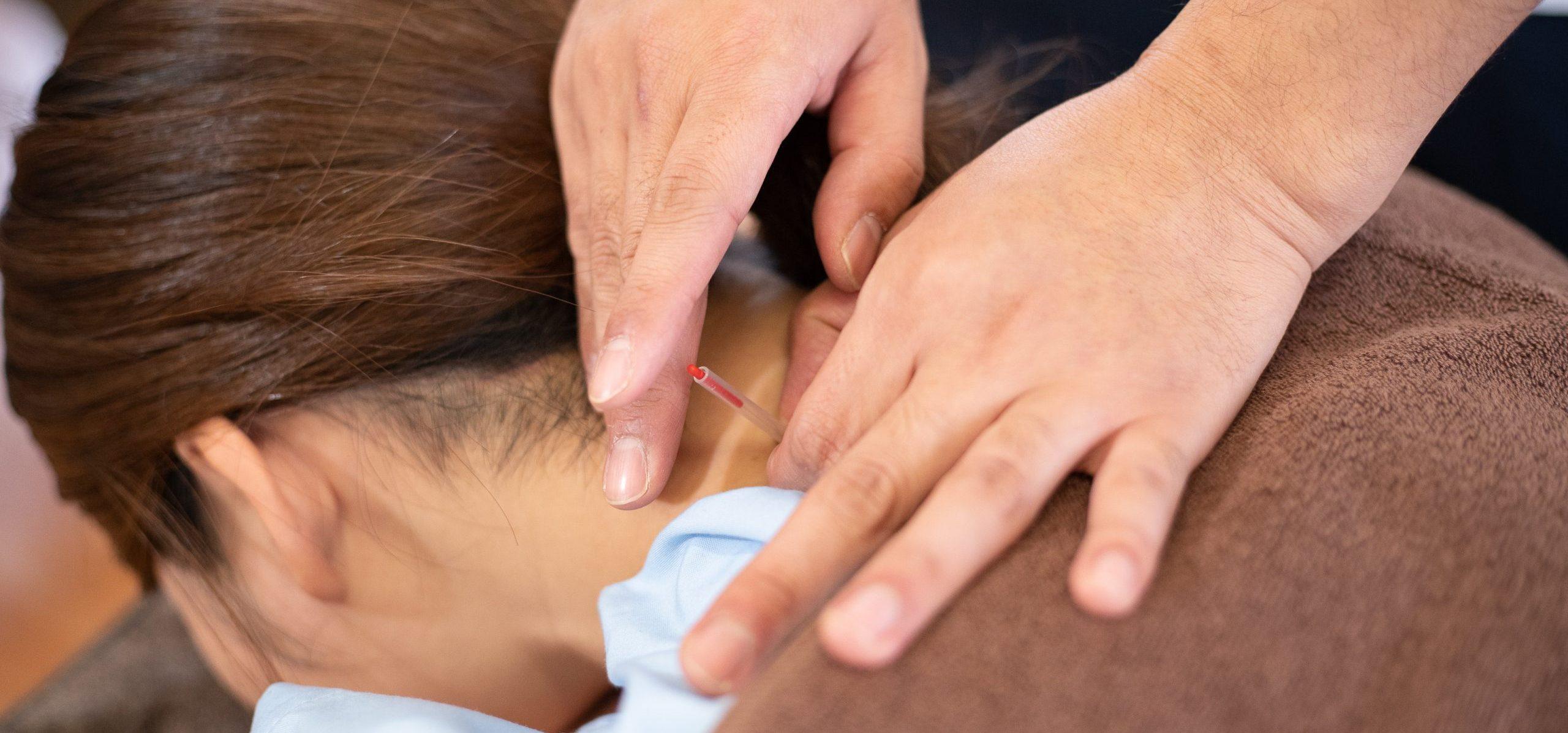 肩こりには鍼灸治療|名取市の鍼灸院