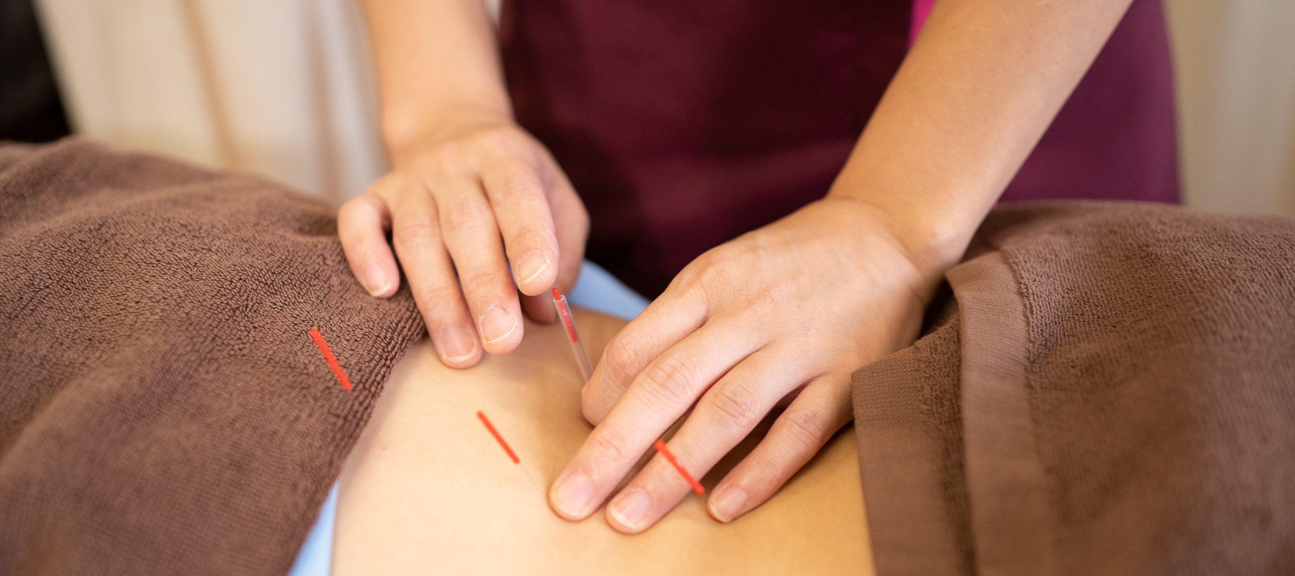 腰痛の鍼灸治療|名取市の鍼灸院